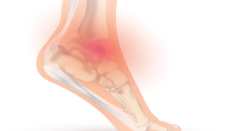 https://www.injurymap.com/diagnoses/ankle-sprain